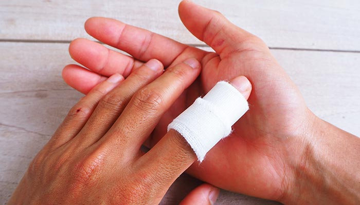 Your Finger Injury Guide: What They Are and How to Treat Them
