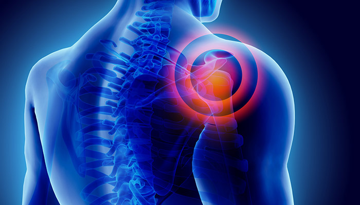 What to Expect After a Rotator Cuff Surgery